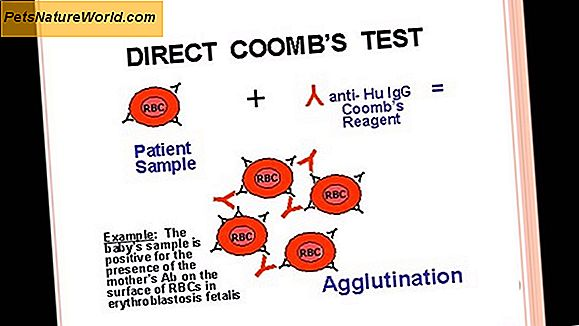 Coomb's test